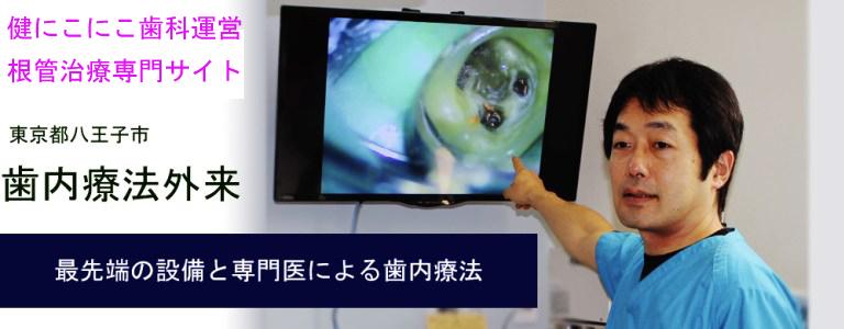 健にこにこ歯科運営の根管治療専門サイトはこちらから