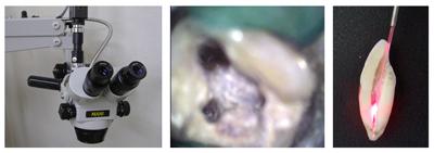 歯内療法外来